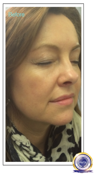 Image Before Having Permanent Makeup Perfect Powdered Effect With Natural Hair Simulation In Support of Sisters Permanent Makeup Due To Chemo Therapy
