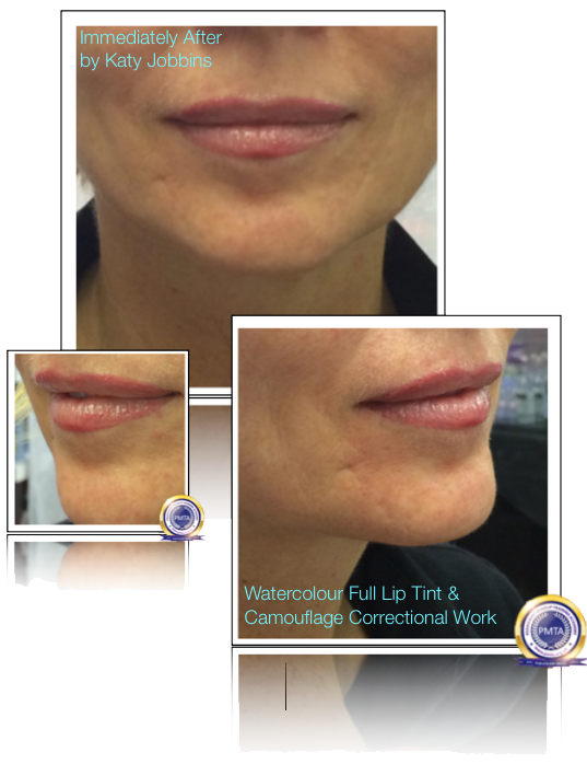 26-2-Katy Jobbins Permanent Makeup Watercolour Full Lip Tint And Camouflage Correctional Work