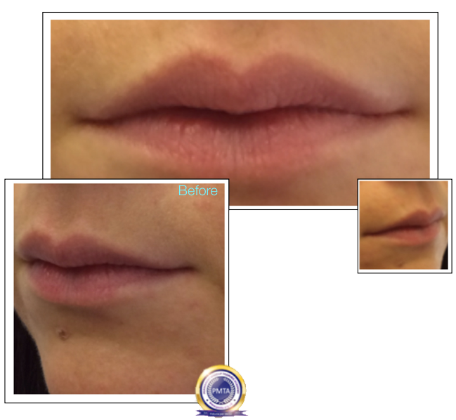 Before Re-Balanced Lips With Permanent Makeup Watercolour Lip Blush by Katy Jobbins