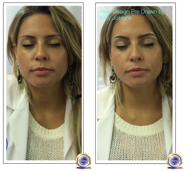 Prior to the effect of a surgical brow lift using permanent eyebrow makeup