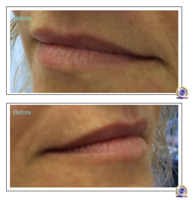 Before Having Full Lip Tint Permanent Makeup