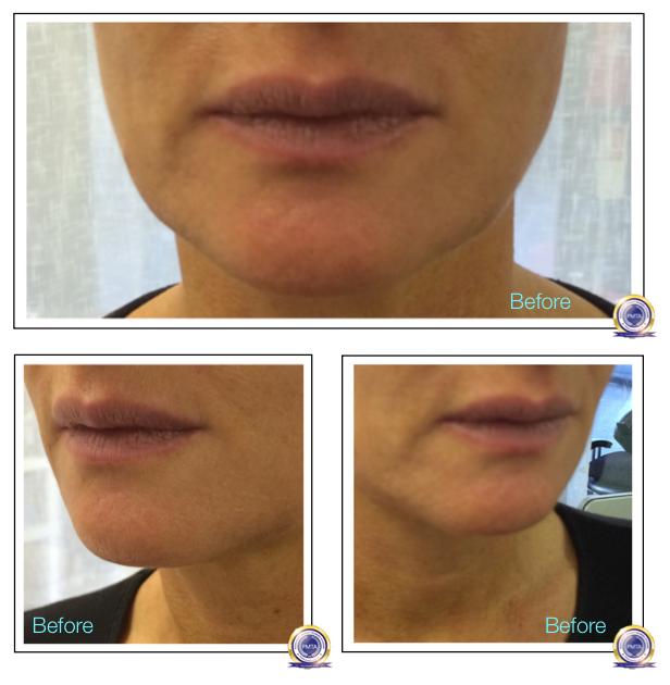 7-Katy Jobbins Permanent Makeup Watercolour Lip Blush