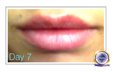 Day 7 - After Permanent Makeup Full Lip Tint