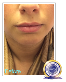 Before Permanent Makeup Full Lip Tint