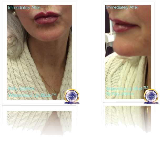 Permanent Lip Colour Over Dermal Lip Fillers