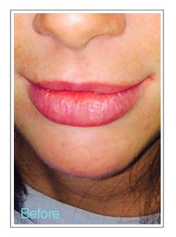 Before Permanent Makeup Watercolour Full Lip Tint