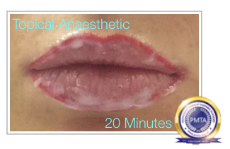 Anesthetic applied Before Permanent Makeup Watercolour Full Lip Tint