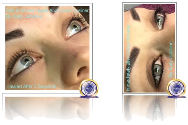 Healed After 2 Sessions of Permanent Makeup Upper & Lower Eyeliner