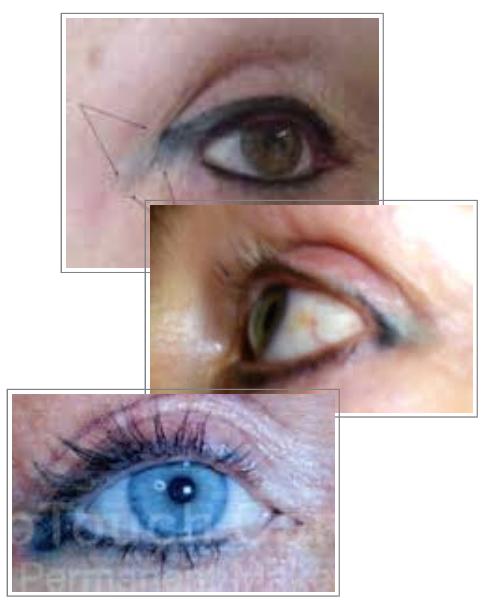 Permanent Makeup Eyeliner Migration